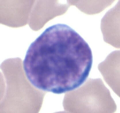 This is a Lymphocyte. A lymphocyte is a kind of white blood cell in the vertebrate immune system